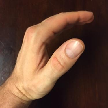 Open Grip